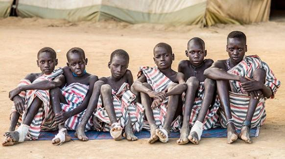 guinea worms